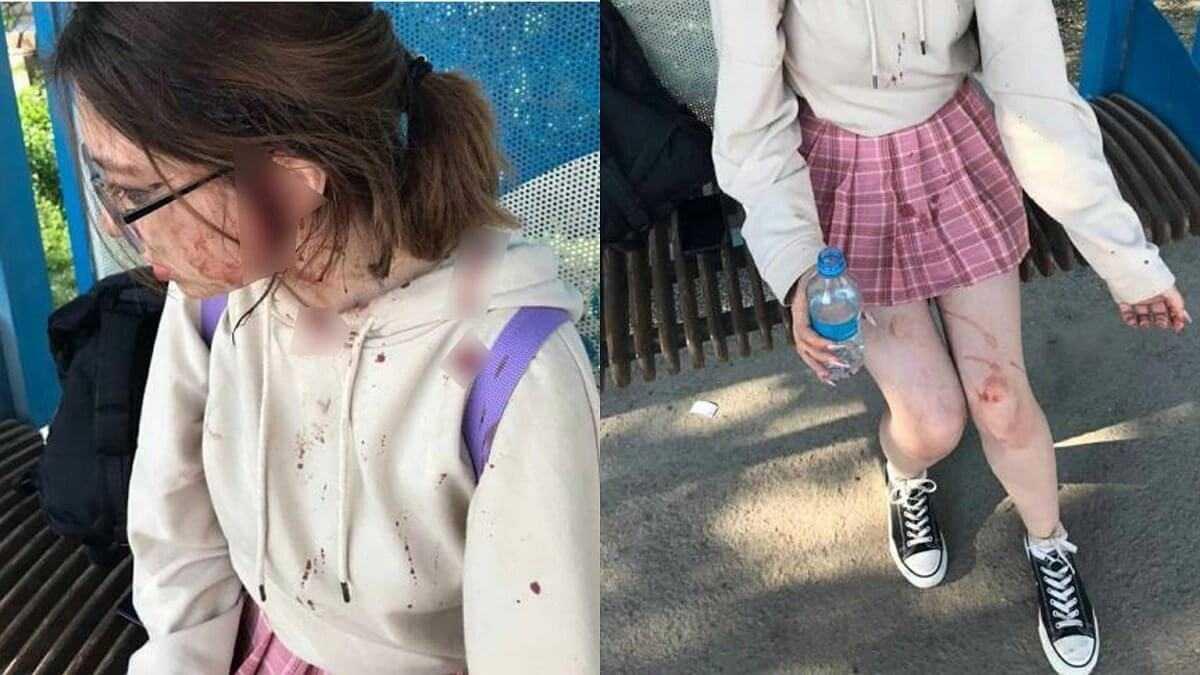 Вся в крови: две женщины жестоко избили девочку на остановке в Алматинской области